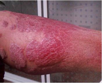 银屑病患者在夏季怎样预防复发