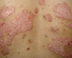 季节性银屑病的护肤方法