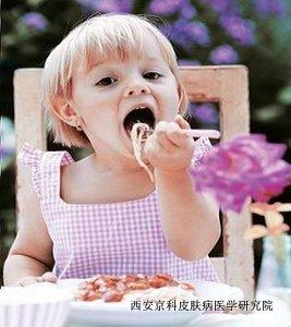儿童银屑病患者饮食要注意的