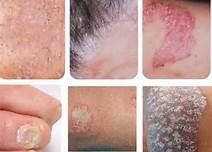 银屑病发病前有什么征兆