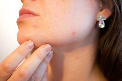 如何确诊银屑病 银屑病的具体症状有哪些